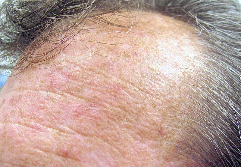 10 Best Actinic Keratosis Home Treatment
