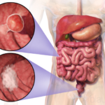 Colon Cancer Warning Signs