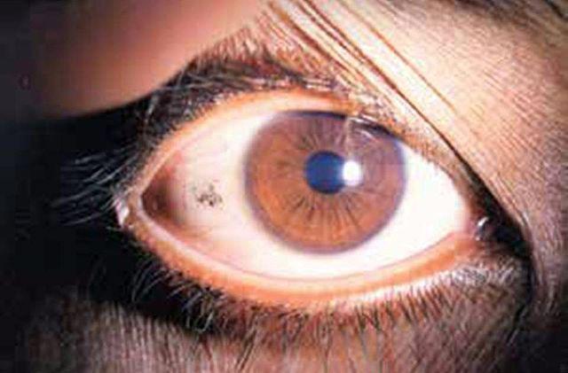 Vitamin A Deficiency Symptoms